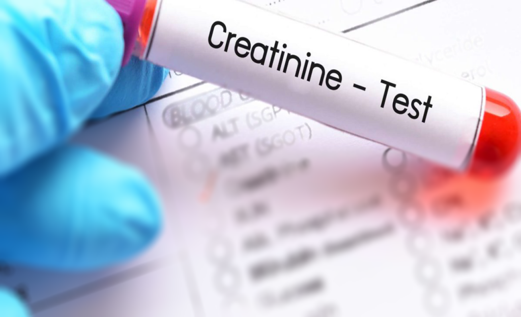 Serum Creatinine Test: About,Normal Range, How to lower ...